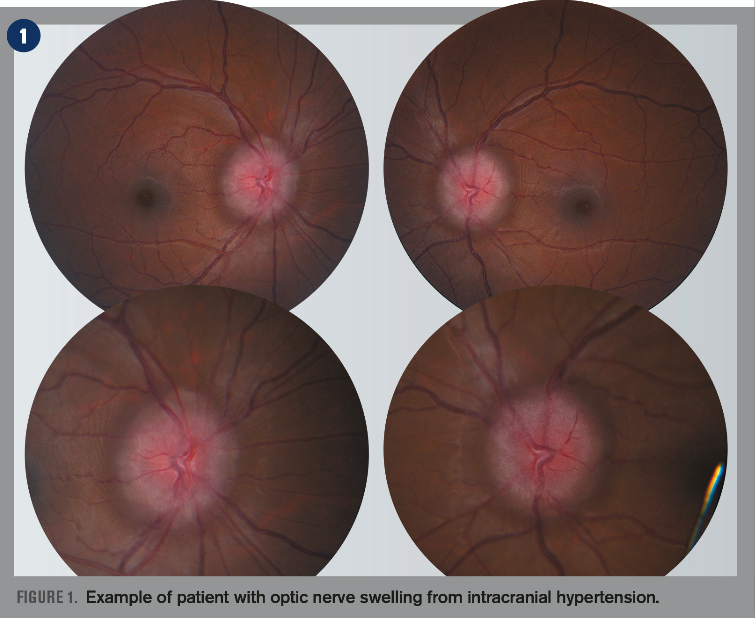 How to diagnose a swollen optic nerve