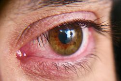 New therapy addresses dry eye flares