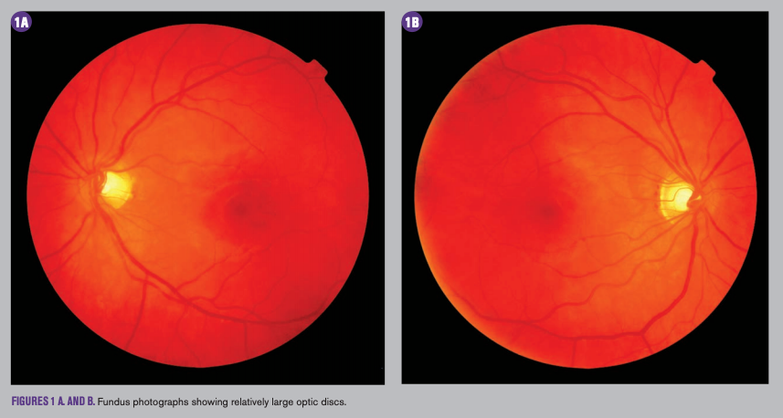 Be Leery Of Large Optic Cups When Screening For Pediatric Glaucoma