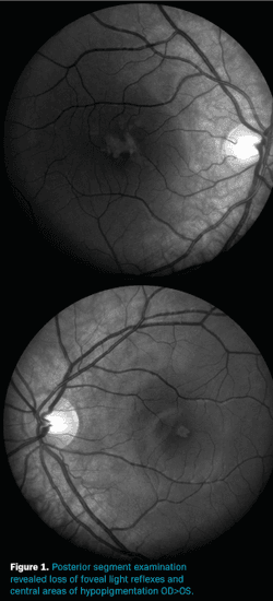CASE REPORT: Self-induced maculopathy by 12-year-old boy