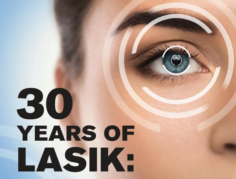 30 Years Of Lasik