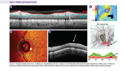 OCT in glaucoma management: Green isn't always clean