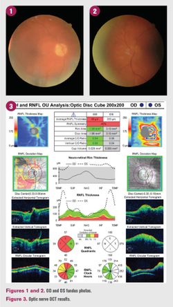 Patient experiences sudden decrease in vision