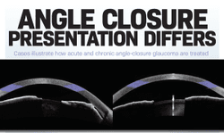 Angle closure presentation differs