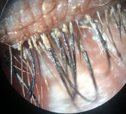 Blog: A case of Demodex infestation with eyelash extensions
