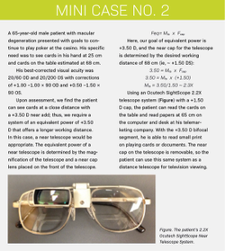 Approach patients with low vision on an individual basis