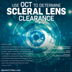 Use OCT to determine  scleral lens clearance