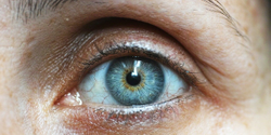 Why ODs should treat dry eye
