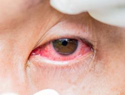 Treatment options for ocular allergies