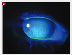 How to incorporate nutrition into dry eye practice