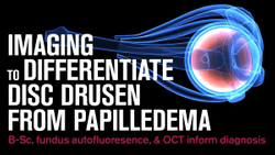 Imaging to differentiate disc drusen from papilledema