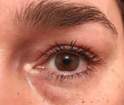 Eyelid taping may offer temporary alternative to blepharoplasty