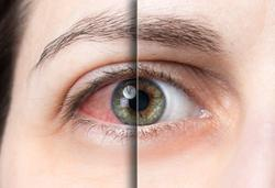 What patients say about their dry eye journey