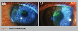 Case review of challenging ocular surface disease