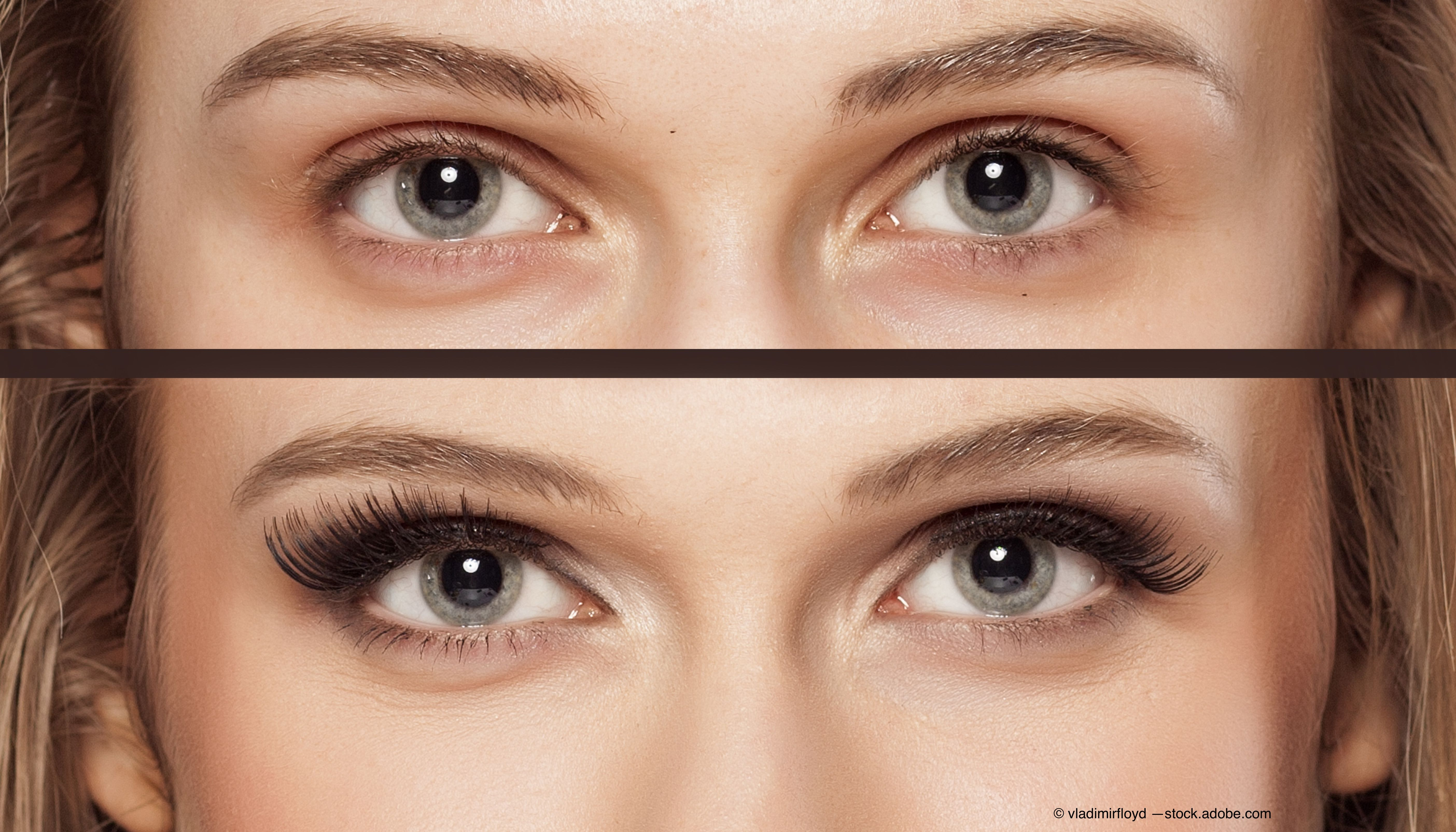 How to educate patients on risks of eyelash enhancements