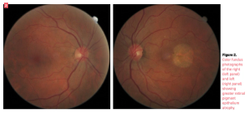 Central serous retinopathy is not a benign disease