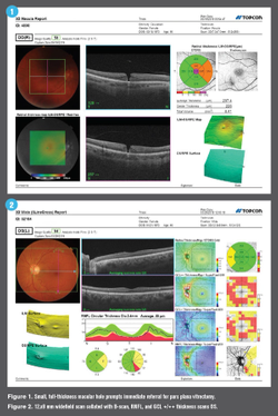 Swept-source and multimodal OCT technologies offer clinical advantages