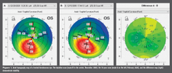 Long-term outcomes of corneal cross-linking