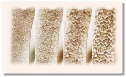 Guideline-directed Osteoporosis Treatment Found in Decline