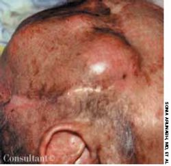 Metastases to the Scalp