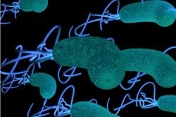 H Pylori Independently Associated with Carotid Plaque Formation, Investigators Find