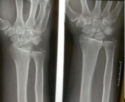 Wrist Injury: What's Your Impression?