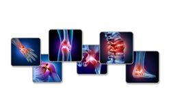 Pain Management for Osteoarthritis: A 6-question Quiz