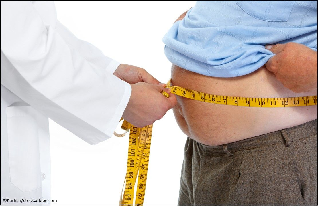 obesity, obesity management, overweight, healthy lifestyle, diet, exercise