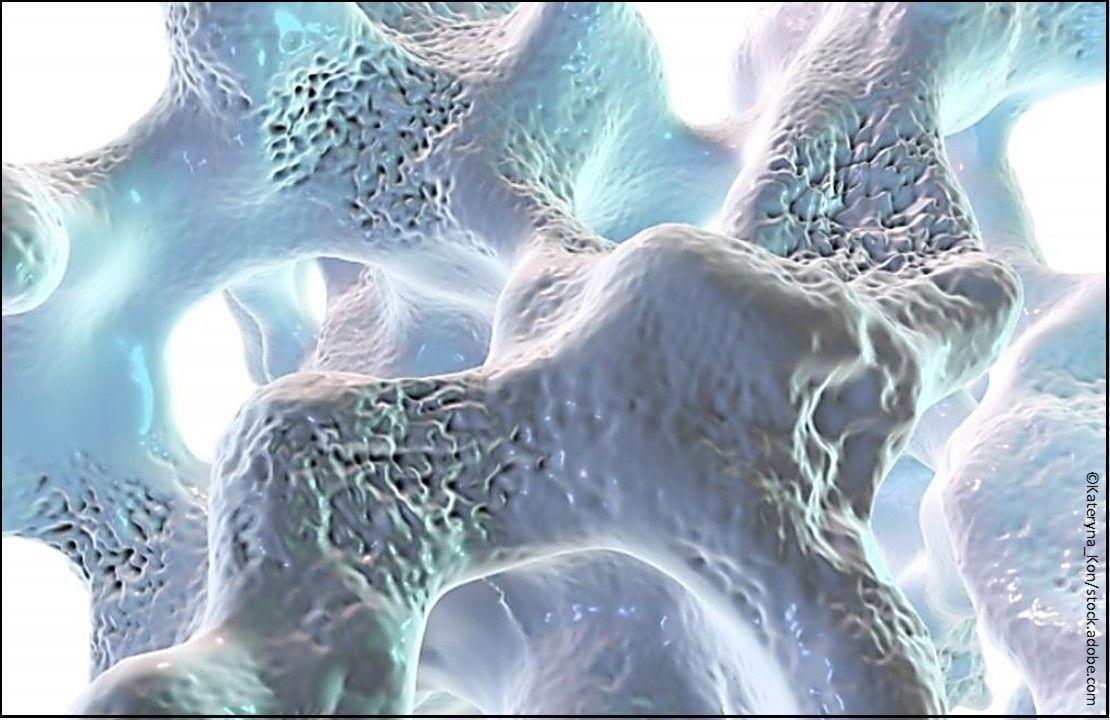 osteoporosis, osteoporosis treatment, osteoporosis medications, postmenopausal