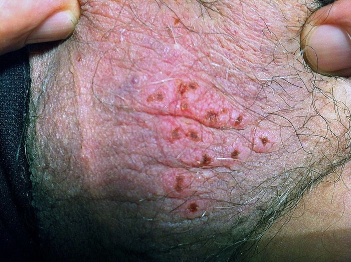 Herpes Hsv 2 Infection Patient Care Online