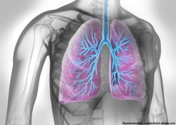 Significant Reductions in Exacerbations Seen in Broad Population of Severe Asthma Patients