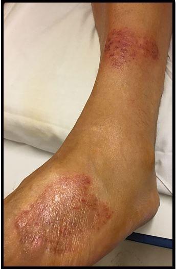 Dry Cough Rash On Legs
