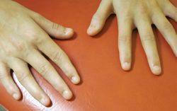 Developmental Disorders in Children: A Photo Quiz