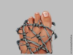 All About Gout for Primary Care: Treating Acute Gout