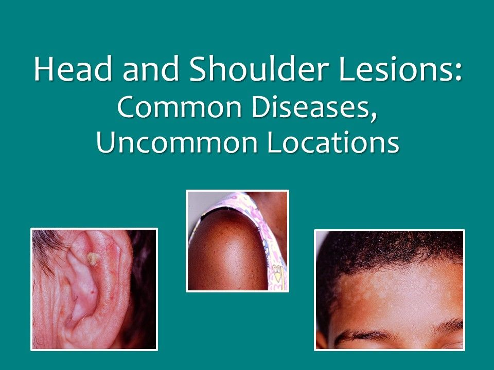 Head and Shoulder Lesions: Common Diseases, Uncommon ...