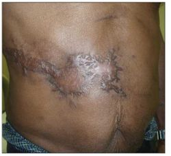 Keloid After Herpes Zoster in an HIV-Infected Person