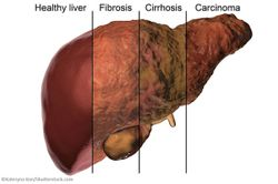 HCV/HIV-coinfected Patients Recover Liver Function with All-oral DAA Therapy