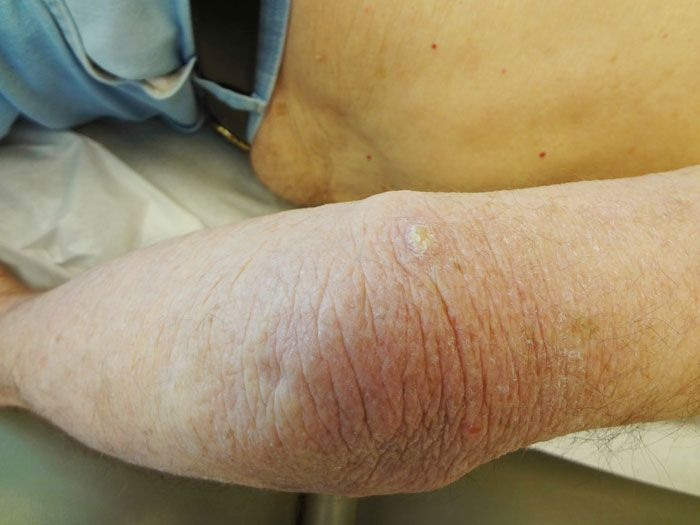 verruca vulgaris láb