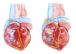 SGLT2 Inhibitor Therapy May Reduce Risk of Atrial Arrhythmias in T2D