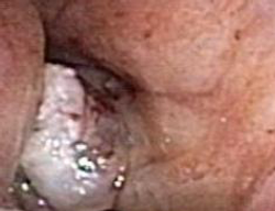 Blood-Streaked Sputum and Dyspnea: Your Dx?