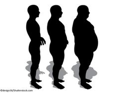 Study Shows Benefits of Bariatric Surgery for Mild-to-Moderate Obesity
