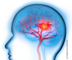 Stroke Rates Rising Among US Young Adults, yet 1 in 3 Don't Know Common Symptoms