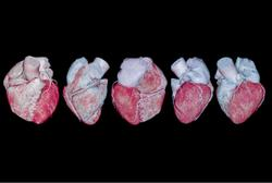 CCTA Imaging Helps ID Silent Atherosclerosis in Adults with No Known CVD