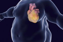 Metabolically Healthy Obesity May Increase Risk of Heart Failure, but Not Heart Attack or Stroke