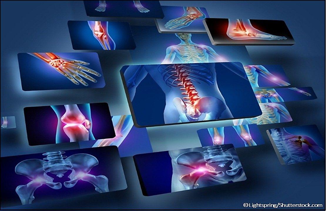 plaque psoriasis, plaque psoriasis medicine, rheumatoid arthritis, approved drug