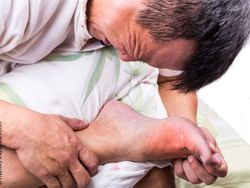 Post-Test on Gout in Primary Care