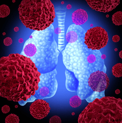 No Significant Signal in Adverse Events in Phase 3 Trial Assessing Nivolumab Plus Platinum-Doublet Chemotherapy for Resectable Non-Small Cell Lung Cancer