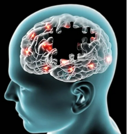 Pharmacy Clinical Pearl of the Day: Symptoms of Alzheimer Disease