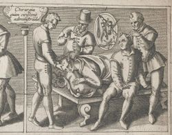 Pharmacy Fact: On Trepanning and Holey Heads for the Sake of Medicine