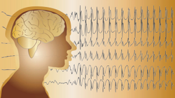 Pharmacy Clinical Pearl of the Day: Seizures